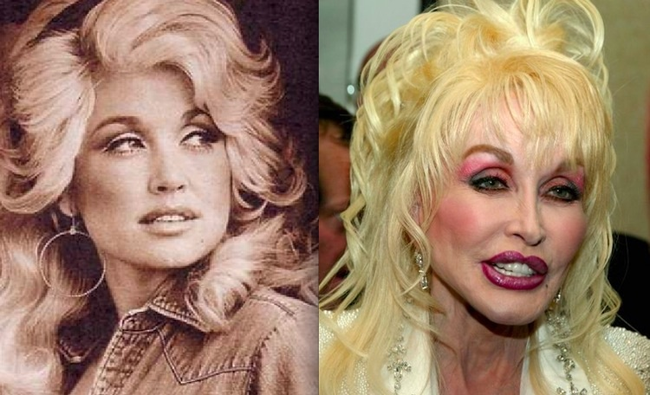 8.) Dolly Parton might be more plastic than human at this point.