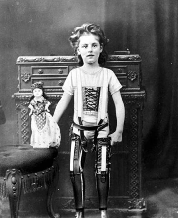 16.) A child with artificial legs (1898).